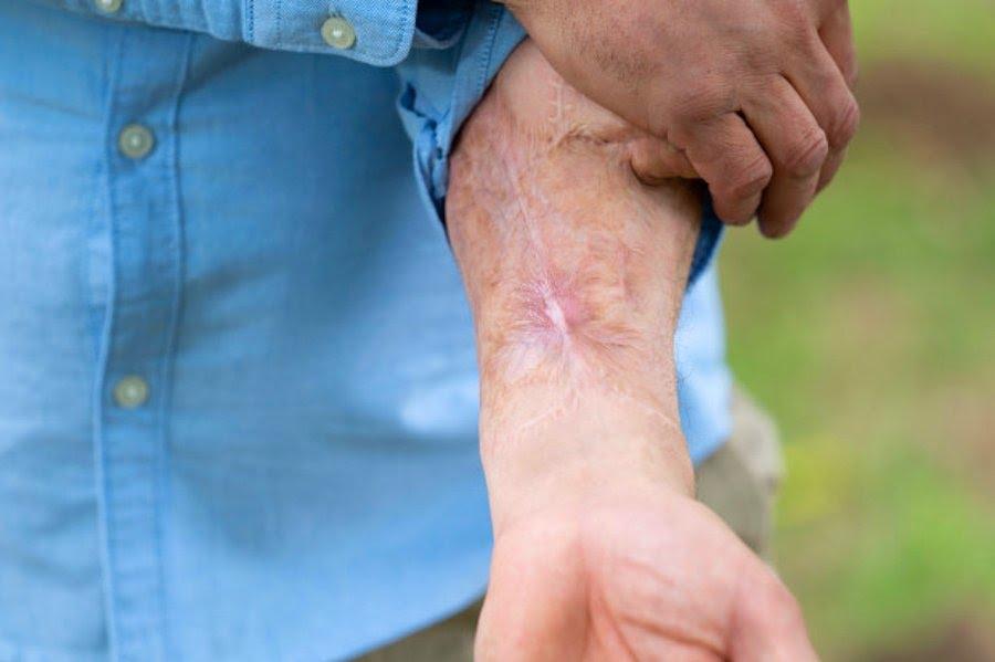 4 yıldır kolunda penisiyle yaşayan adam