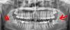yirmilik diş